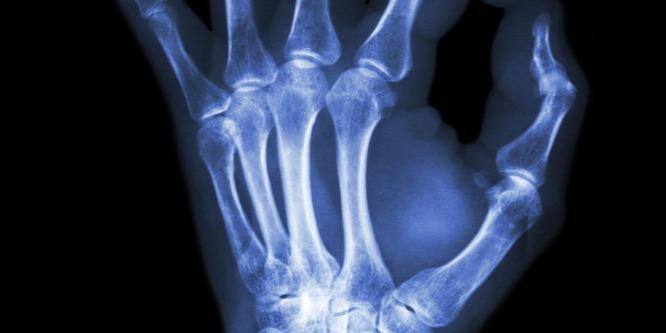 Jóga, ahogy még nem láttuk - így néz ki röntgen alatt!