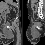 Forr�s: Journal of Medical Case Reports