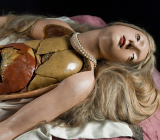 Forr�s: Anatomica Gynecologum