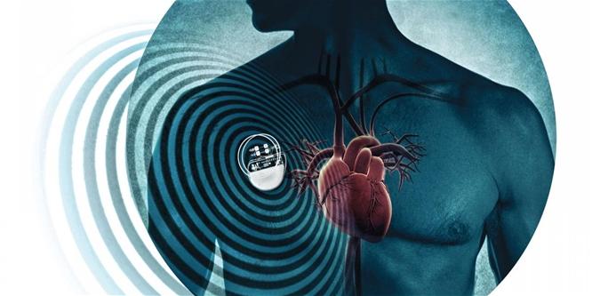 Az egészségügyi kiegészítők óriási biztonsági kockázatot jelenthetnek