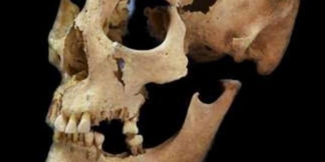 Forrás: Anthropology and Palaeoanatomy Munich