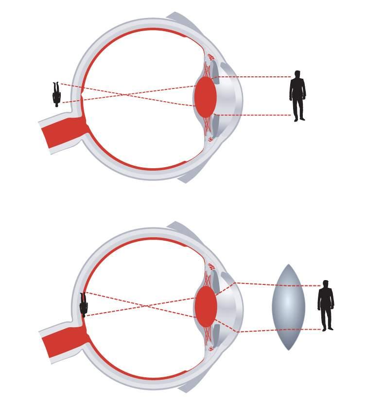 Egyre több a rövidlátó   Rövidlátás kezelése   Lézeres szemműtét