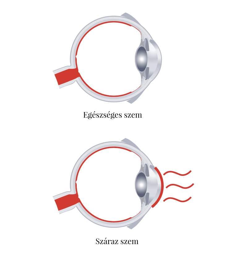 Ha a gyermeknek fáj a szeme, mit kell tennie - Szemüveg