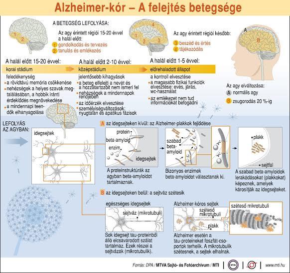 Alzheimer-kór: a magas vérnyomás is kockázati tényező